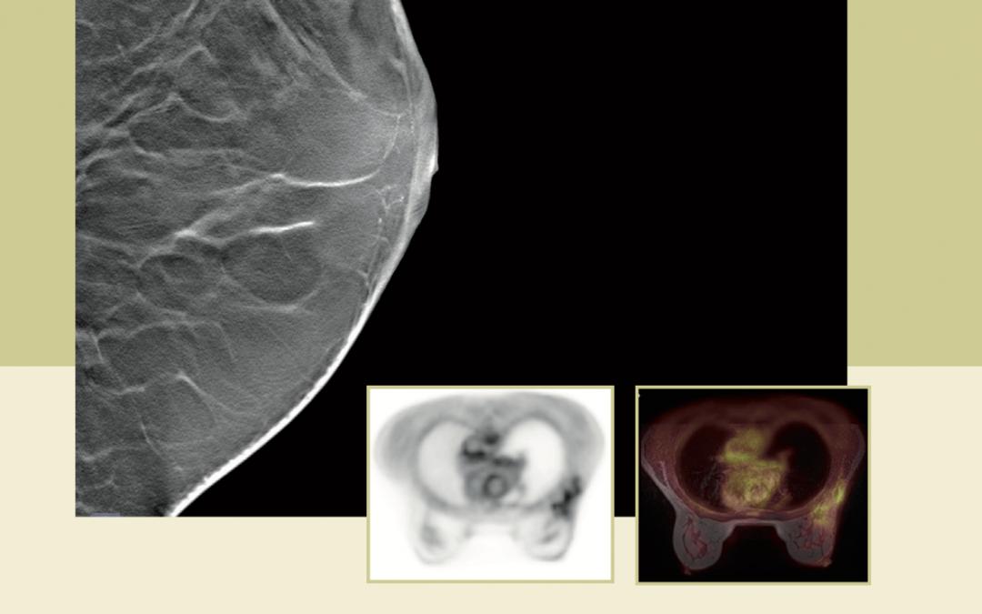 25. September 2019: Fortbildungsveranstaltung – Moderne Diagnostik und Therapie des Mammakarzinoms